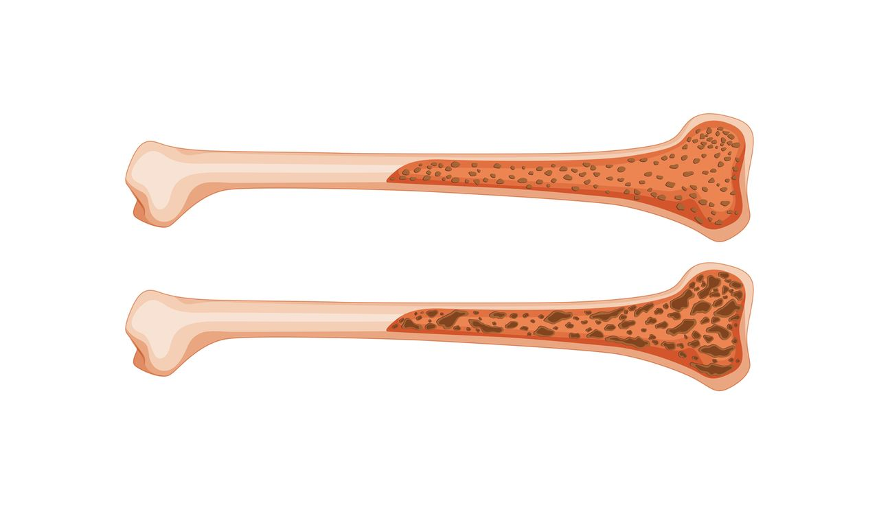 bones-density